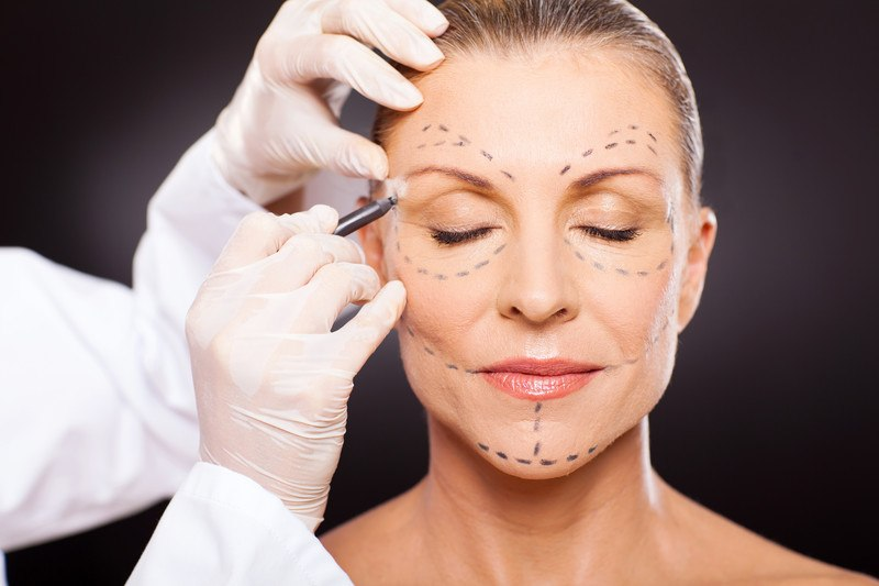 This image shows a woman with her eyes closed, while someone in white latex gloves and a white lab coat draws dotted lines on her face with dark pencil, representing the best cosmetic surgery affiliate programs.