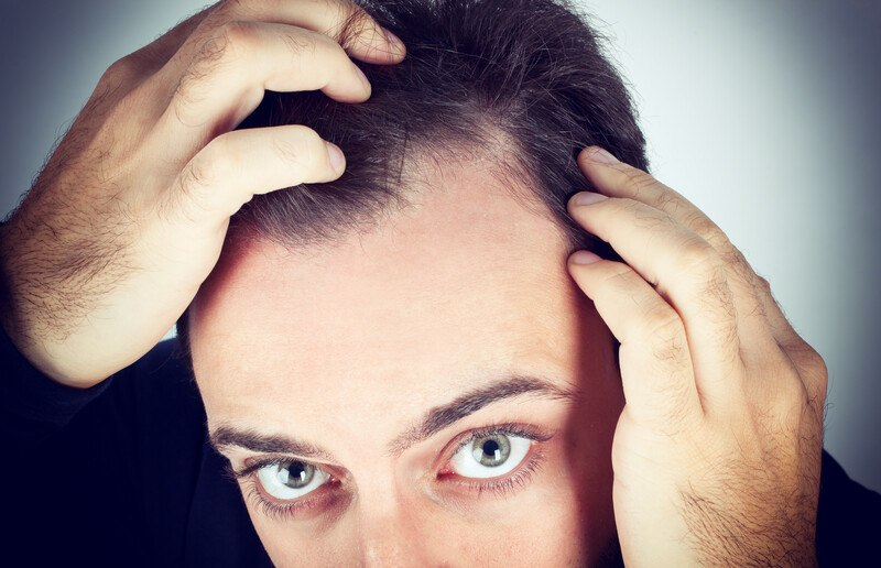 This image shows dark haired man looking up into a mirror, with his hands to his head as if he is investigating an area of thinning hair, representing the best hair loss affiliate programs.