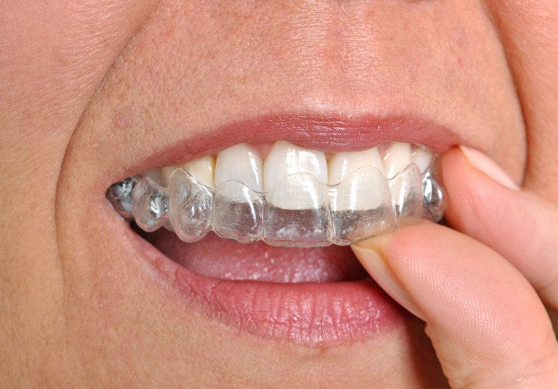 This photo shows a closeup of a woman's mouth as she inserts a clear aligner, representing the best orthodontic affiliate programs.