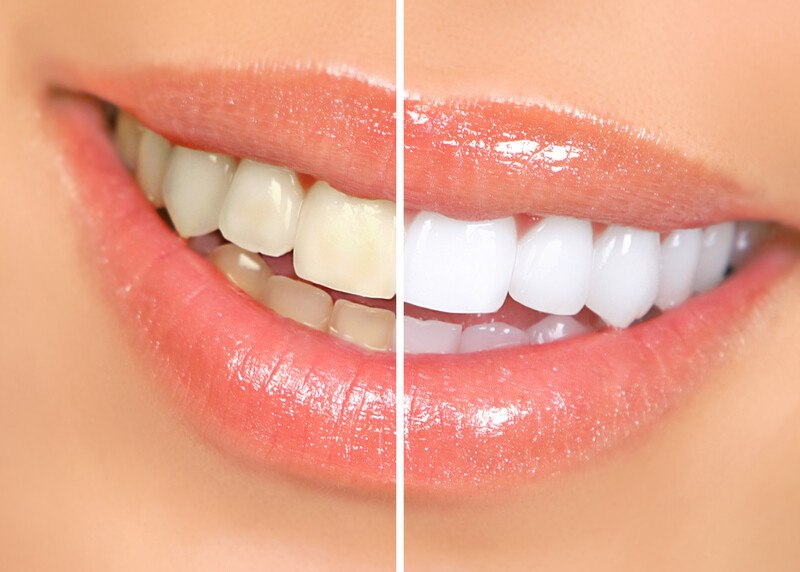 This photo shows a closeup of a woman's smiling mouth, with slightly yellow teeth on the left side of the photo and whitened teeth on the right side of the photo, representing the best teeth whitening affiliate programs.